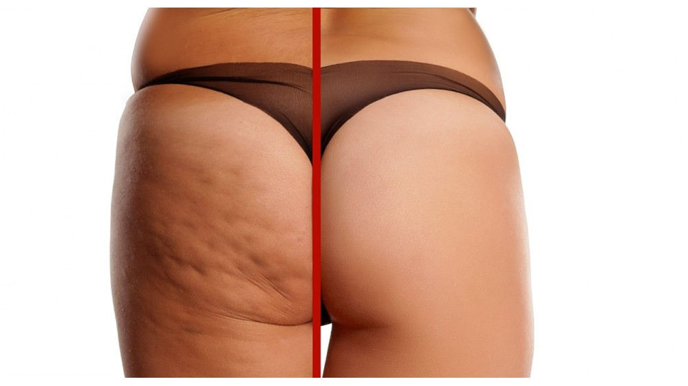 S.O.S Cellulite: Come combatterla. I consigli di Faimed.it
